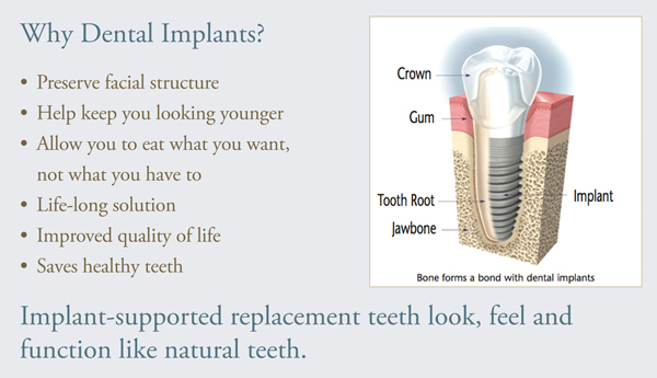 Why Dental Implants? Implant supported replacement teeth feel, look and function like natural teeth.