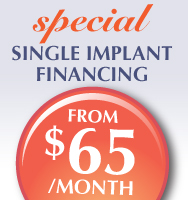 Financing for Dental Implants - from a dentist in Mississauga