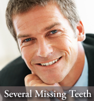 Dental Implants - Options for several missing teeth - from a dentist in Mississauga