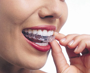 Orthodontics - Invisalign - Less treatment time. Mississauga, Meadowvale, Streetsville, Milton, Georgetown, Brampton