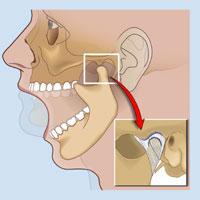 Temporomandibular Disorder treatment in Mississauga