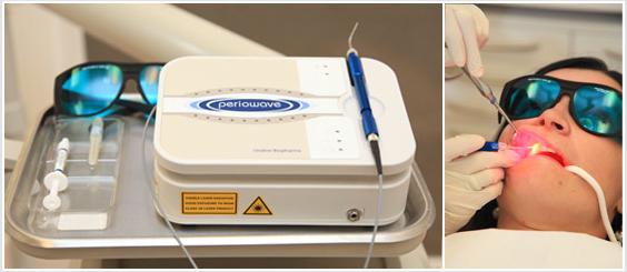 Periowave Laser - Dental Laser in Mississauga, Meadowvale, Streetsville, Milton, Georgetown, Brampton